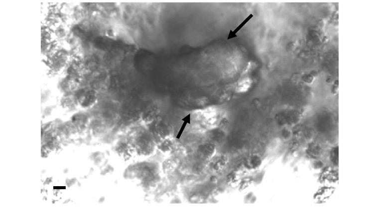 Particella di carbonato di calcio