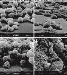 The importance of Vitamin C in Coral Calcification Process