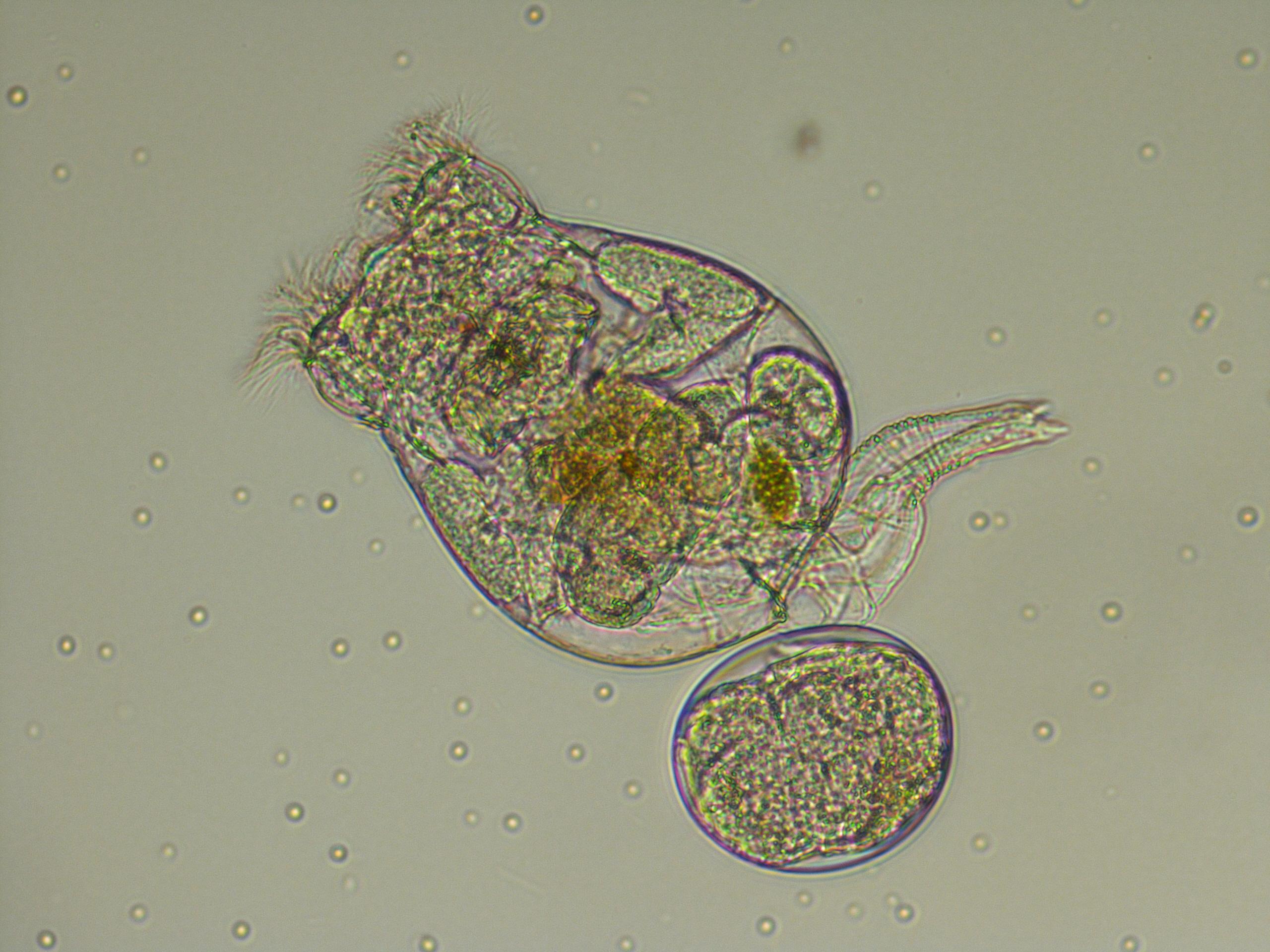 rotifero al microscopio con ingrandimento di circa 200 volte